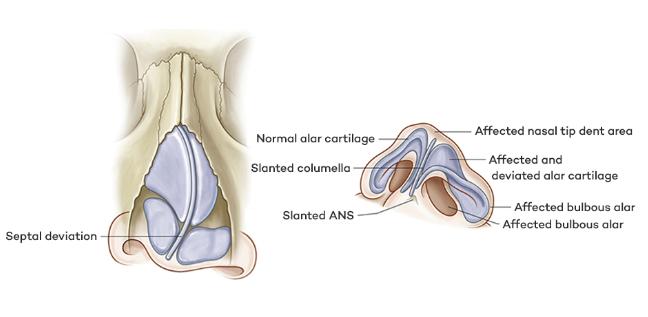 nasal deformity revision