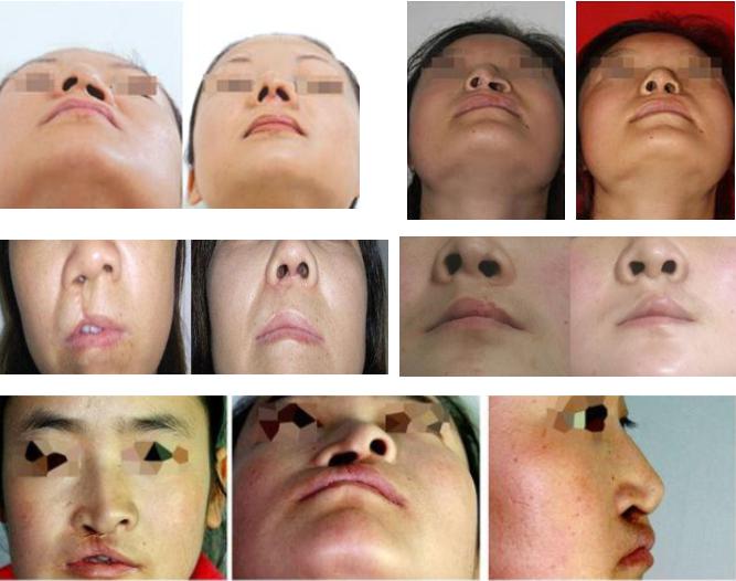 nasal deformity