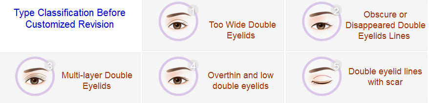 revisional double eyelid surgery
