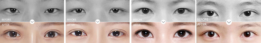 double eyelid revision