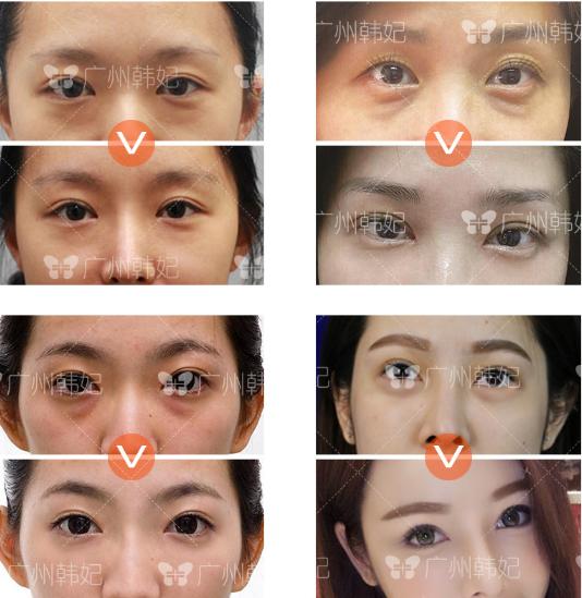 eyebag revision