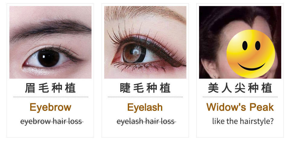 eyelash, eyebrow hair plant