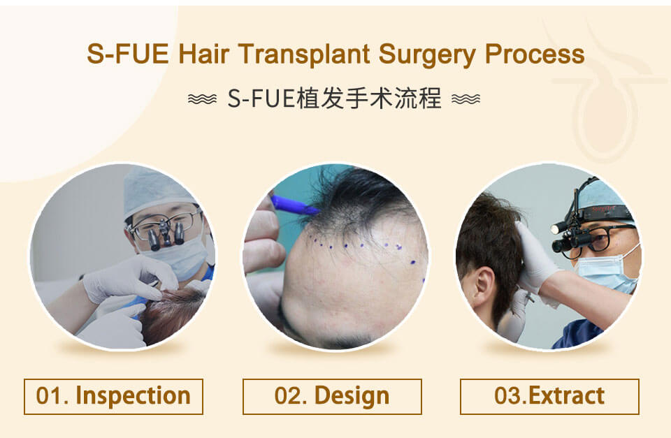 inspection , design and extract hair folicles