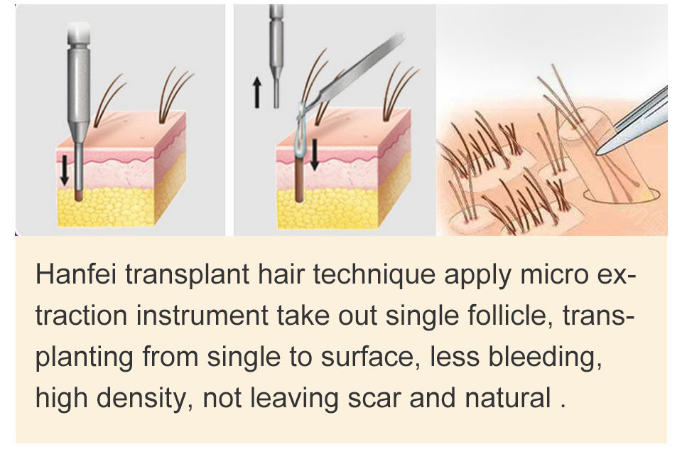 FUE hair transplant theniques