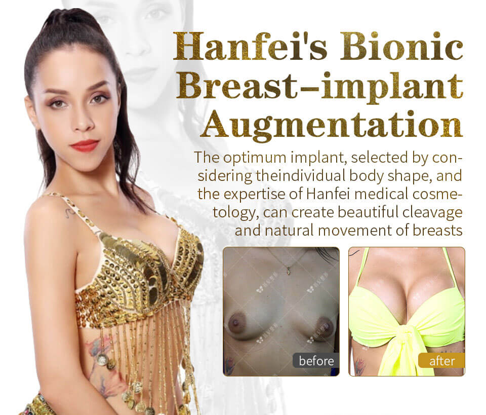 Brazilian Girl had silicone breast augmentation in Hanfei medical cosmetology