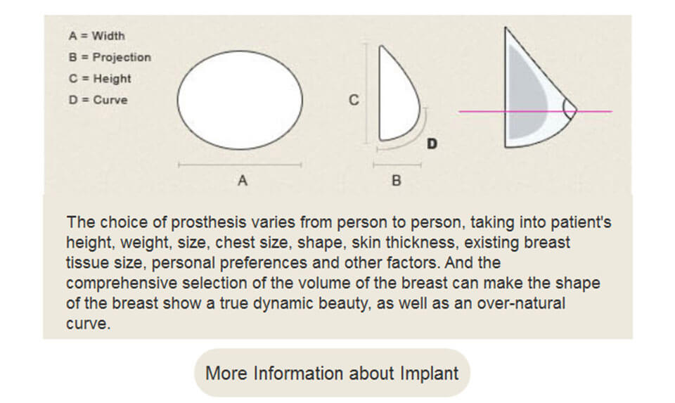 how to choose implants?