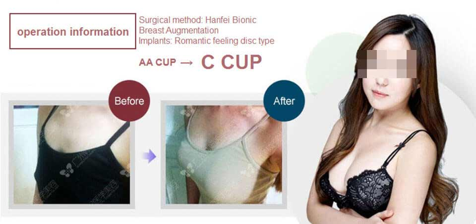 A cup to C cup breast augmentation